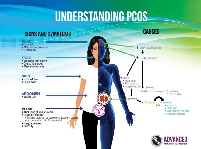PCOS-AOR1
